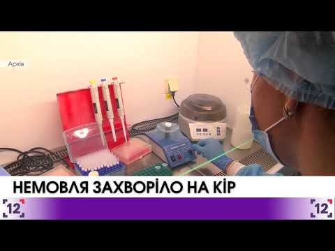 Baby fell ill with measles in Novovolynsk