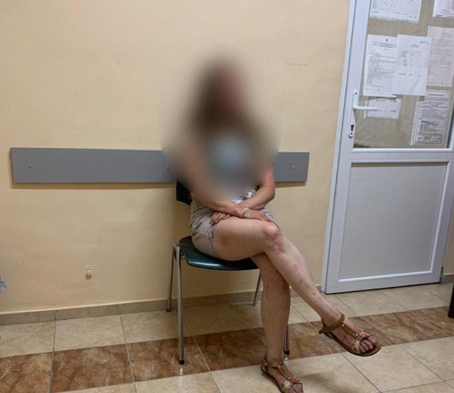 У Луцьку  23-річна дівчина зарізала собаку і хотіла вбити себе. ФОТО