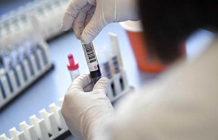 В Україні 5710 хворих на коронавірус, на Волині – 158