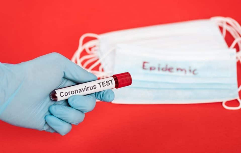 В Україні виявили 588 випадків коронавірусу за добу: на Волині – ще 27 хворих