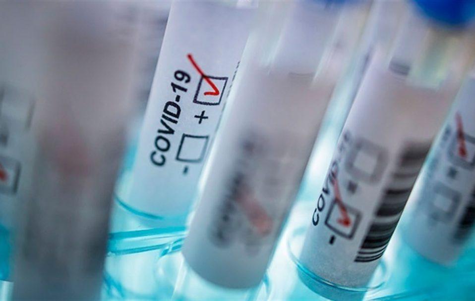 В Україні – 948 випадків коронавірусу за добу, на Волині – 65