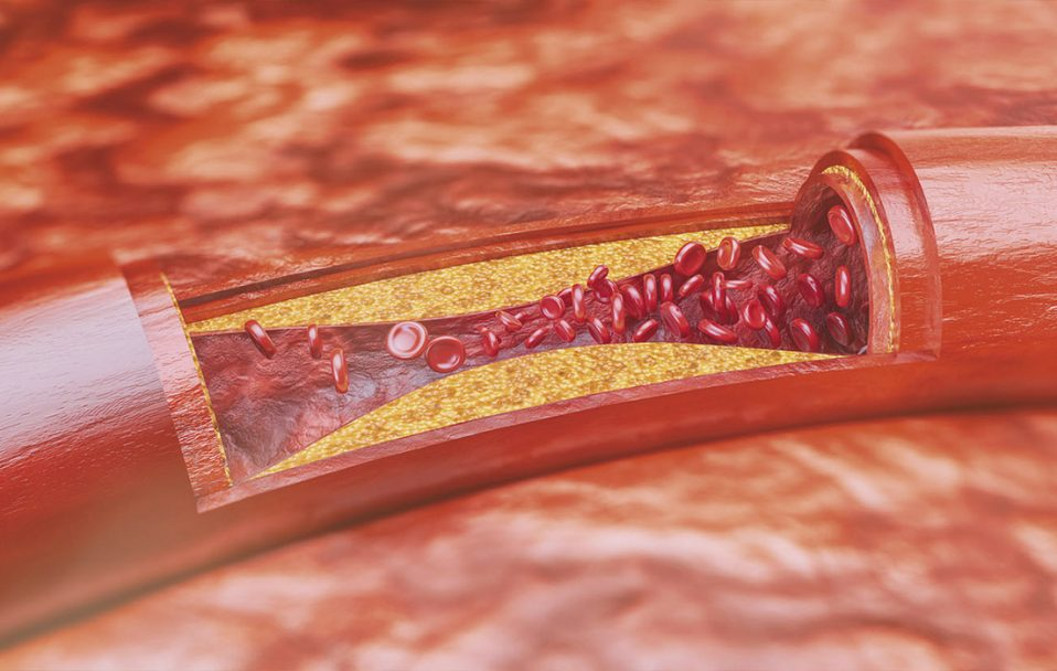 Атеросклероз починається від моменту народження, – волинський лікар