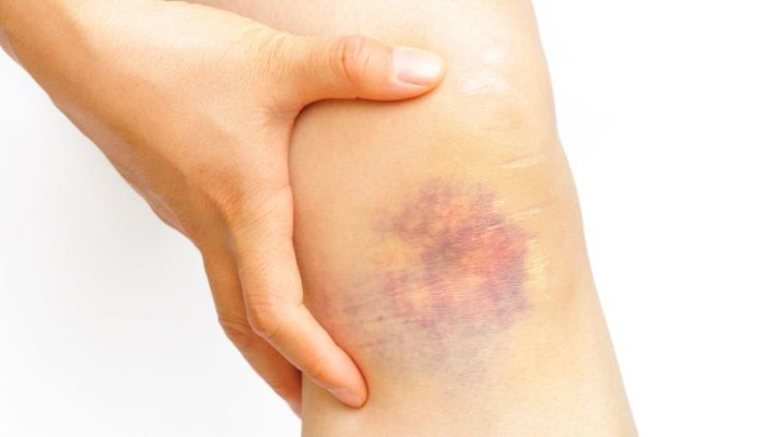 Синці на тілі: коли потрібно бити на сполох. Пояснення волинського лікаря