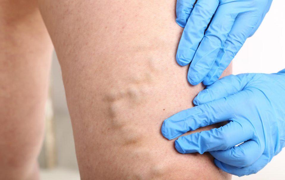 Волинський судинний хірург розповів, чи потрібна операція при варикозі